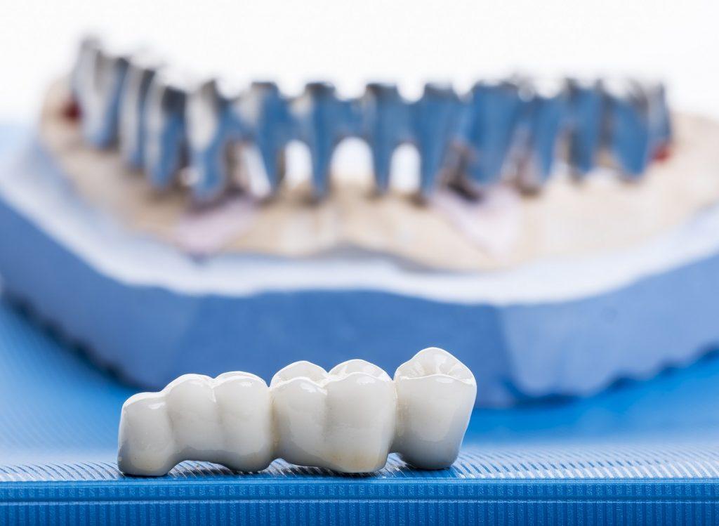 dental crowns concept